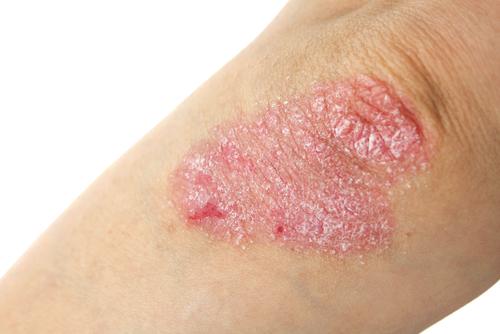 Psoriasi e dermatite atopica. Stop a lesioni e prurito con le nuove terapie. Le indicazioni dei dermatologi  SIDeMaST